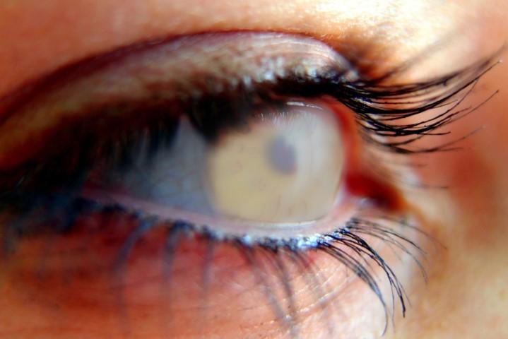 Behandlung Grüner Star Augenarzt Mönchengladbach Vision100 die Augenärzte